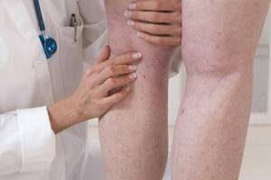 Тромбоз подвздошной вены симптомы