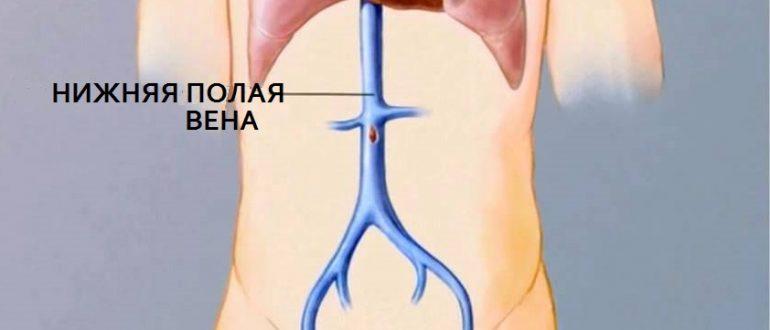 Расширение нижней полой вены причины