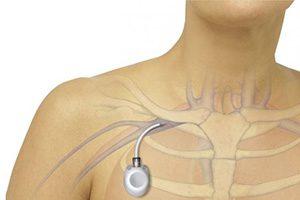 тромбоз подключичной вены причины