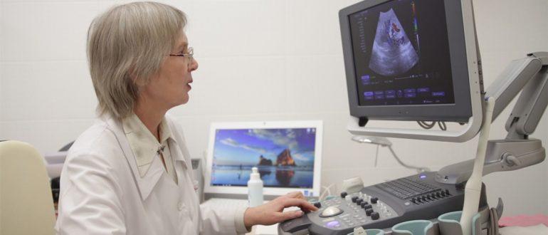 УЗДГ сосудов шеи и головы: что это такое, что показывает УЗИ-допплерография