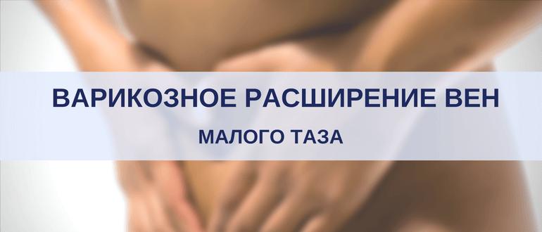 Варикозное расширение вен органов малого таза у женщин