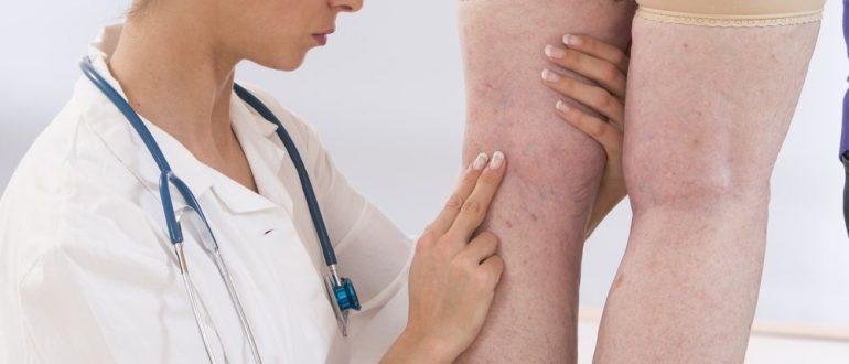 Венозная недостаточность: нижних конечностей, симптомы, лечение, хроническая, препараты, ХВН, 1, 2 степени, классификация, что это такое, признаки