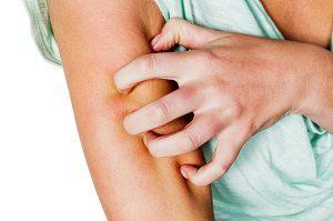 кожный васкулит симптомы