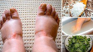 Народные средства при отеках ног