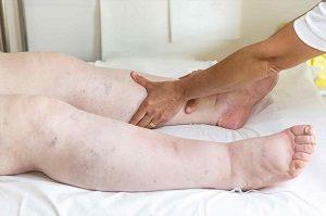 Осложнения при отеках ног