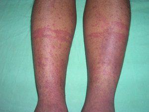 Аллергический васкулит фото у взрослых