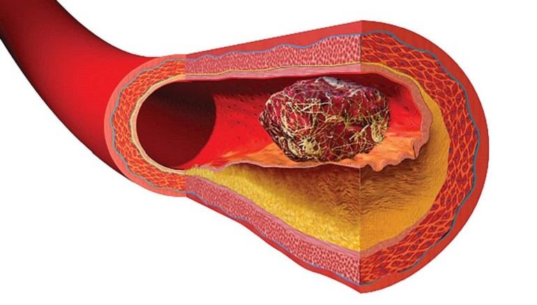 Как понять что оторвался тромб. Можно ли спасти человека если оторвался тромб.