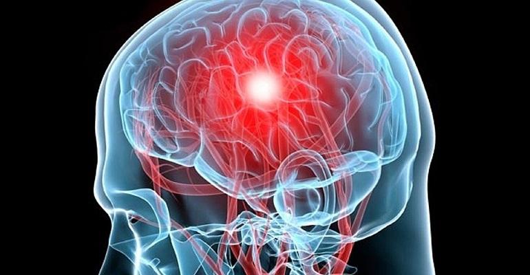 Синус тромбоз головного мозга лечение