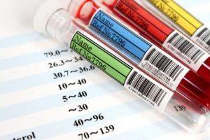 Как проверить сосуды на ногах на тромбы исследование крови