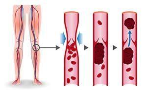 Как проверить сосуды на ногах на тромбы образование