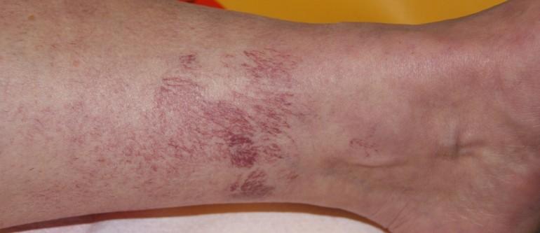 Варикозный дерматит нижних конечностей лечение • Как вылечить аллергию