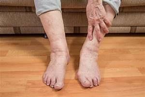 Как проверить сосуды на ногах на тромбы группы риска