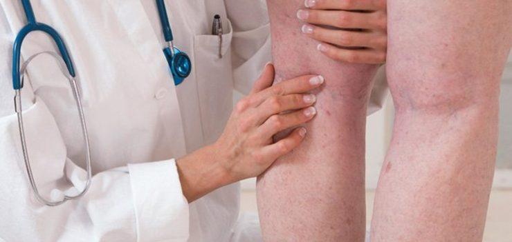 Как проверить тромбы в организме
