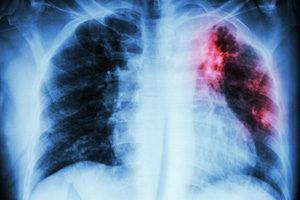 Что делать при низком гемоглобине чем опасно