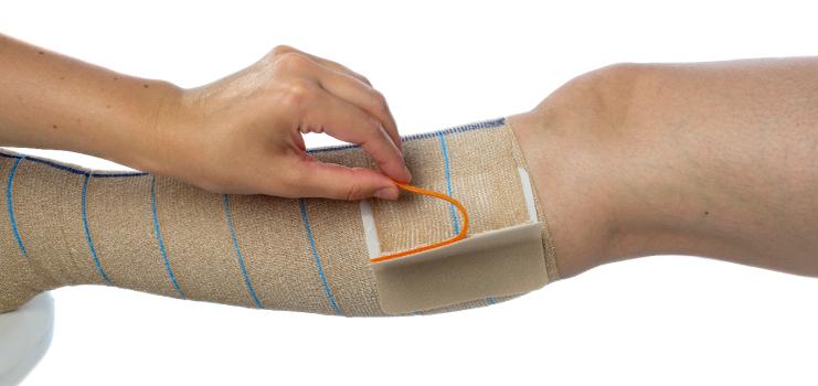 Как перебинтовать ногу эластичным бинтом при варикозе