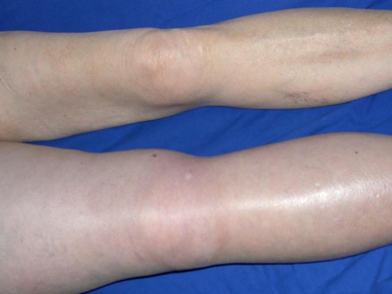 Антифосфолипидный синдром симптомы