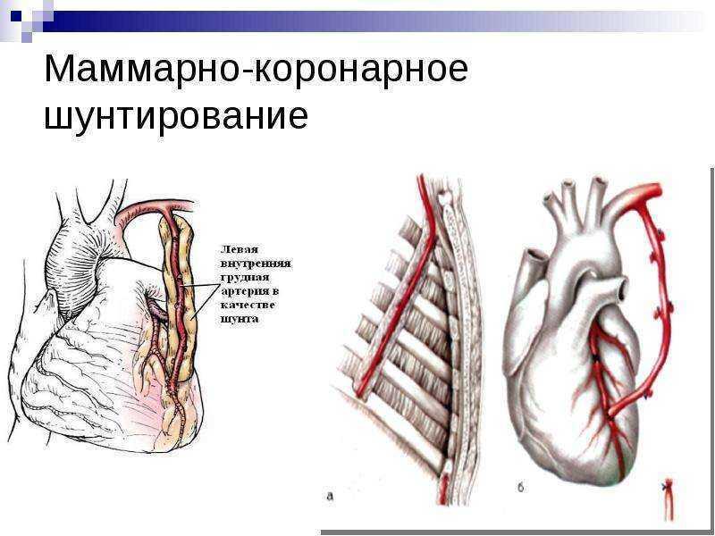 Коронарное шунтирование сердца виды