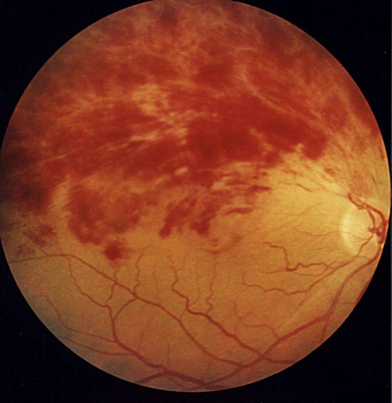 тромбоз сетчатки глаза опасность