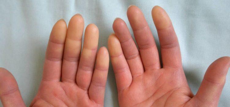 Синдром рейно диагностика